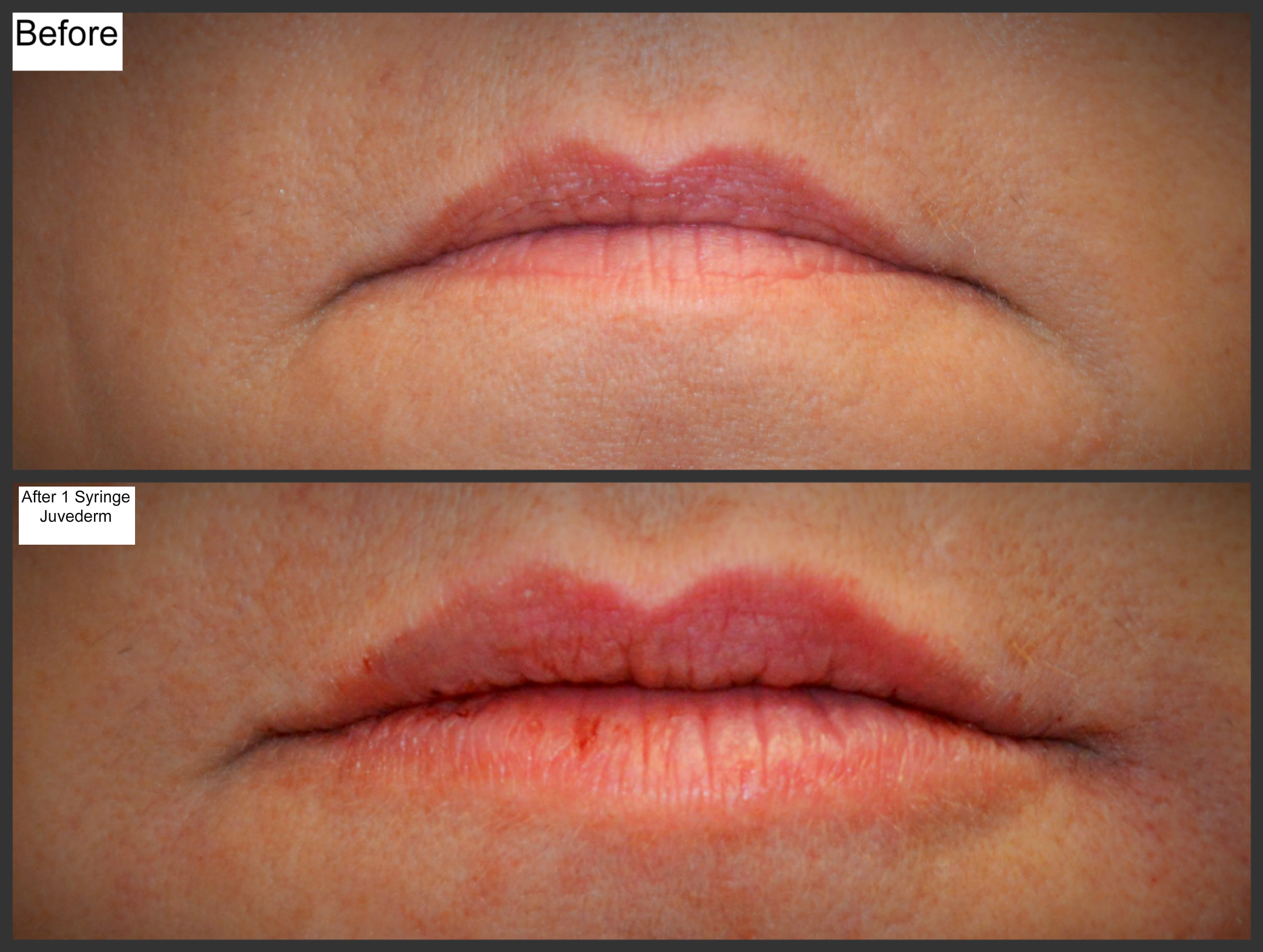 Perfect your Pout w/ Juvederm | Millefiori