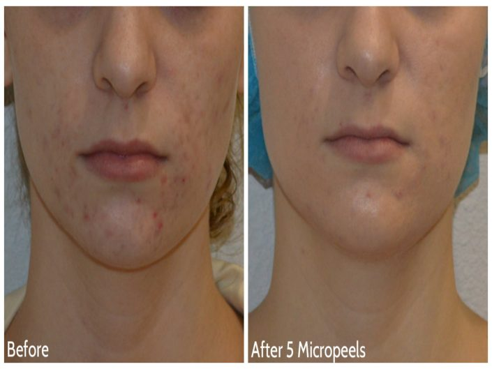 Chemical Peel 1