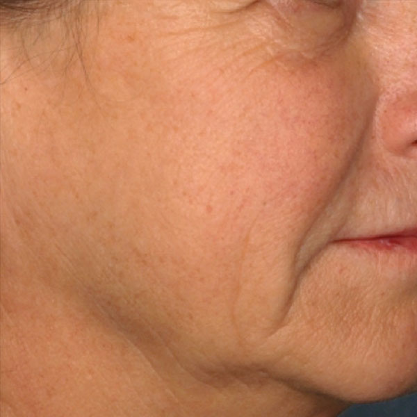picosure-mcdaniel-before
