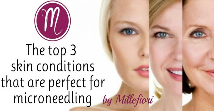 Top 3 Skin Types for Micro-needling