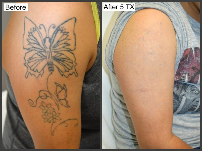 Tattoo Removal 1