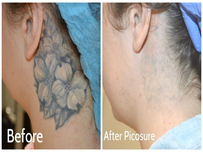 Tattoo Removal 4