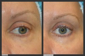 5 Solutions to Beat Under Eye Problems | Millefiori